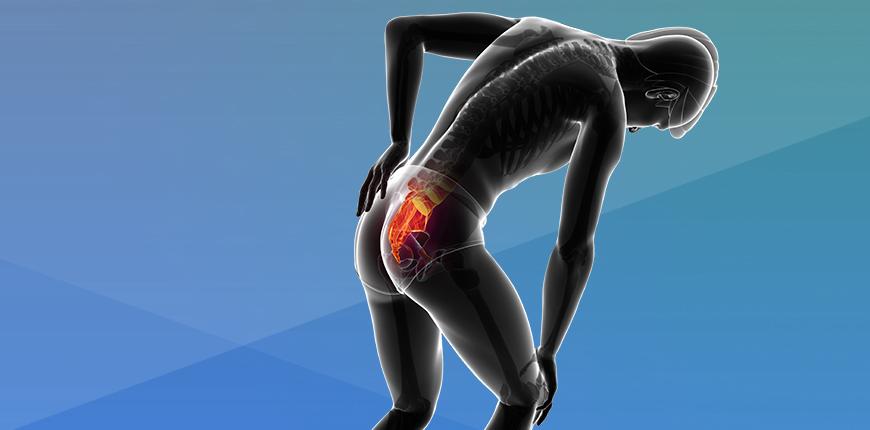 Dor por disfunção da articulação sacroilíaca